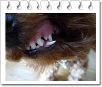 歯が・・・・