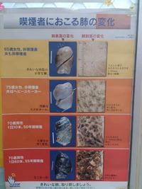 あなたの肺はどれですか。